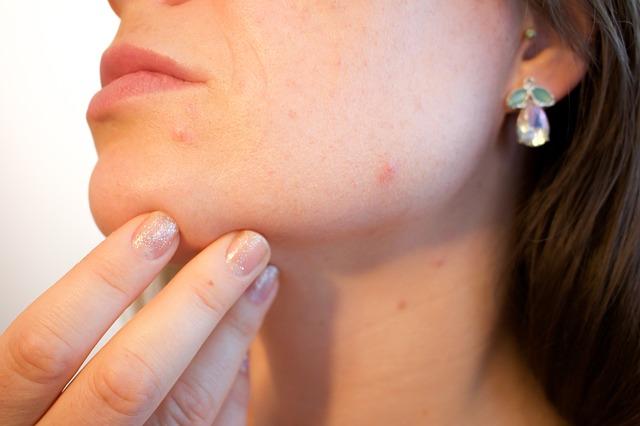 Jak dbać o skórę? Poznaj 3 porady dermatologa